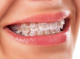 ceramic braces