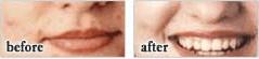 Acnezine-before-after-health-niche