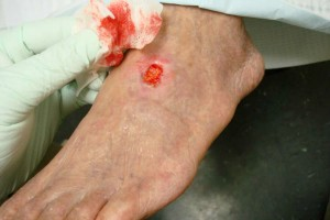 a-new-skin-patch-for-diabetic-patients-health-niche