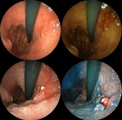 endoscopy-health-niche