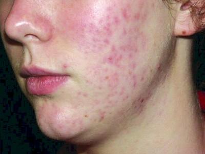 acne-health-niche