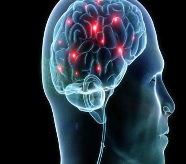 brain-health-niche