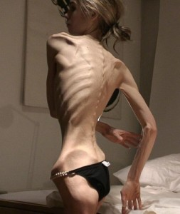 ill effects of anorexia