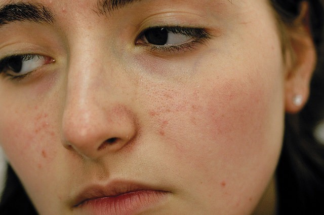 scars due to pimples