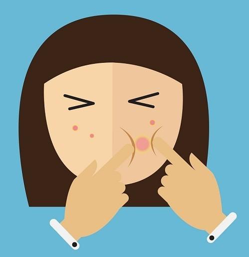 no squeezing pimple