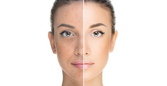 Skin disasters