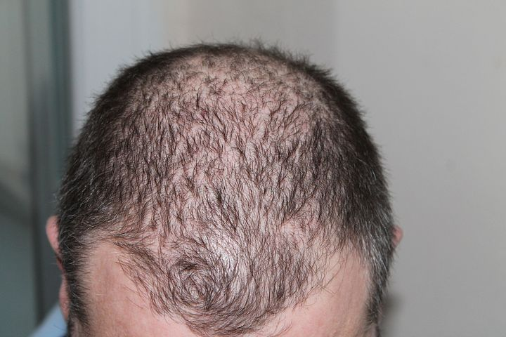 hair-baldness